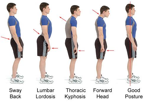 good bad posture