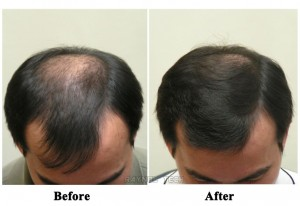 hair regrowth before and after for men